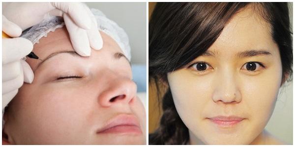 Công nghệ Ruby Laser giúp xóa xăm lông mày hiệu quả, an toàn