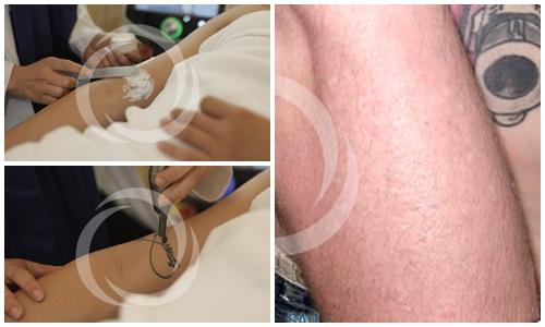 Xóa hình xăm không để lại sẹo bằng công nghệ Ruby Laser