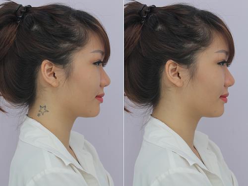 Xóa hình xăm bằng laser đảm bảo không để lại sẹo xấu trên da