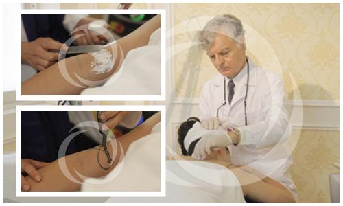 Làm sạch vùng da có vết xăm và bôi tê để tối ưu quá trình xóa vết xăm