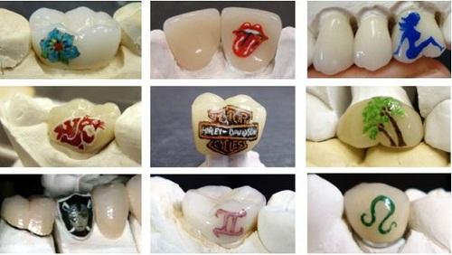 Vết xăm trên răng hoàn toàn không ảnh hưởng tới sức khỏe