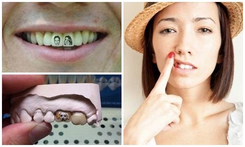 Vết xăm trên răng - Một trào lưu mới của dân chơi Tattoo