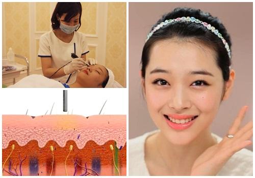Xóa xăm lông mày bằng công nghệ laser số 1 Hoa Kỳ