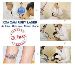 Phương pháp xóa xăm bằng Laser triệt để, an toàn