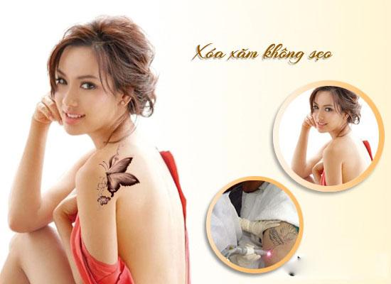 phuong-phap-xoa-hinh-xam-bâng-laser