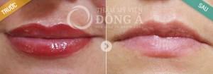 Da môi có trở lại bình thường sau xóa xăm môi không?