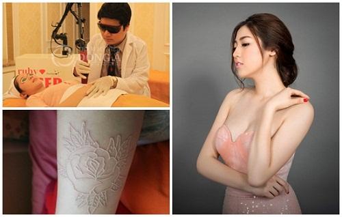 Xóa vết xăm sữa an toàn bằng công nghệ Ruby Laser