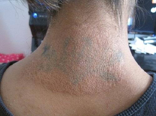 Làn da bị phá hủy do vết xăm gây ra