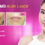 Công nghệ Ruby Laser – Bí quyết xóa xăm môi hoàn hảo