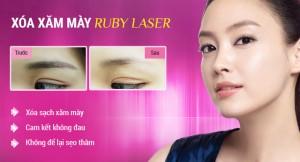 Xóa xăm lông mày an toàn, không đau rát bằng công nghệ Laser hiện đại