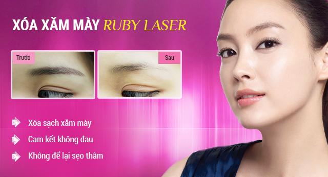 xoa-xam-long-may-bang-ruby-laser