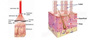 Cùng chuyên gia hiểu đúng về phương pháp xóa hình xăm bằng laser