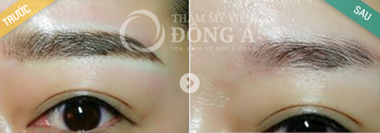 xoa-xam-long-may-bang-cn-laser