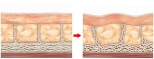 Sau xóa hình xăm làn da có đàn hồi được như trước?