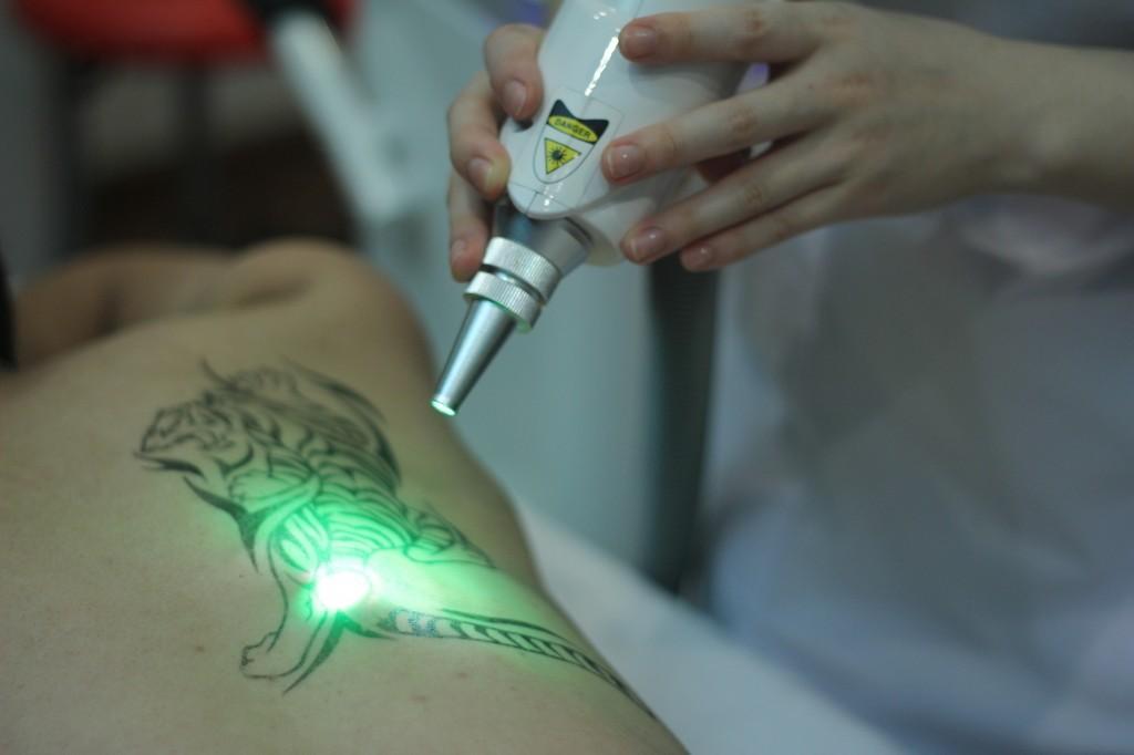 xoa-hinh-xam-bang-laser