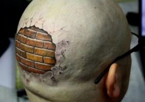 Có nên xóa hình xăm trên đầu bằng laser không?