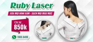 KHUYẾN MẠI THÁNG 5: XÓA XĂM RUBY LASER CHỈ TỪ 850K dụng từ 03/05 – 27/05 trên tất cả cơ sở của Đông Á Beauty